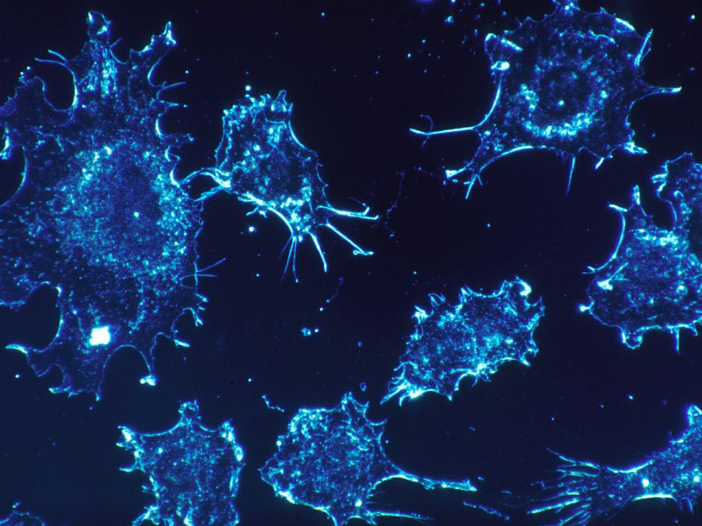El diagnóstico del cáncer con este método ayudaría a crear nuevos tratamientos más efectivos.